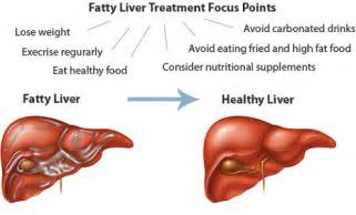 fatty cirrhosis of the liver picture 2