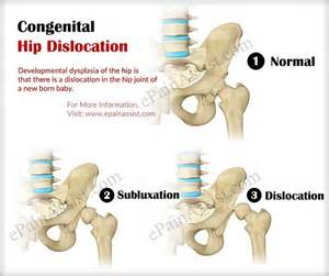 hip joint problems picture 5
