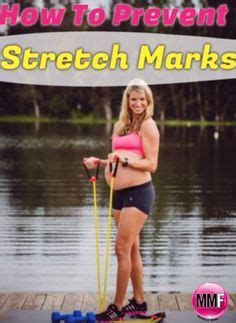 lean muscle to help reduce stretch marks picture 6