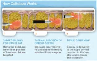 what works best for cellulite picture 13