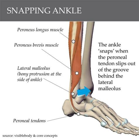 calf muscle strain with popping noise picture 13