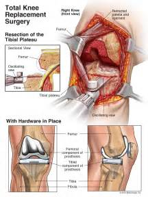 knee joint replacement surgery picture 6