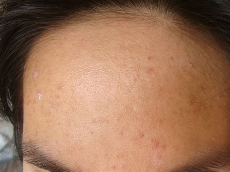 white pimples not acne picture 14