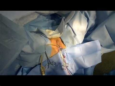 hcpc for mini arc bladder sling picture 14