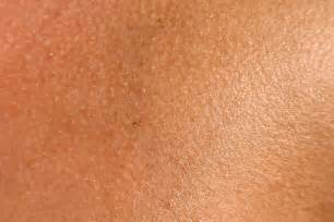 effects of estrogen therapy on skin texture picture 5