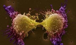 Final stages of prostate cancer picture 5