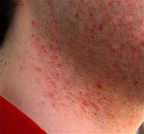 about skin rashes on the neck area picture 9