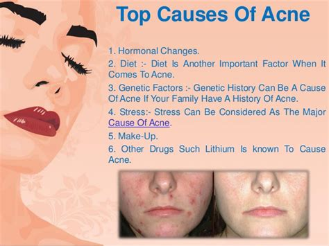 what causes acne picture 5