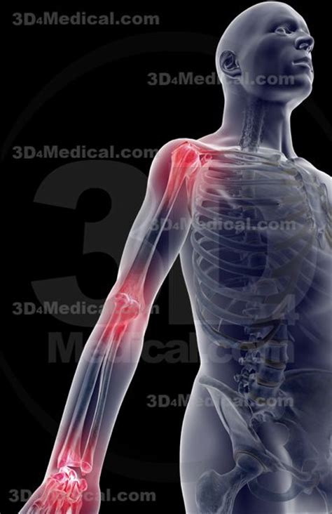 armor and joint pain picture 2