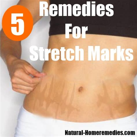 pills for stretch marks picture 11