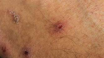 what are skin std picture 6