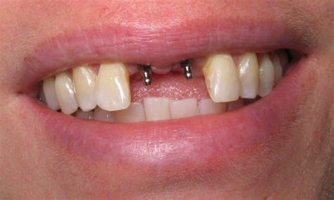 fort worth teeth whitening picture 7