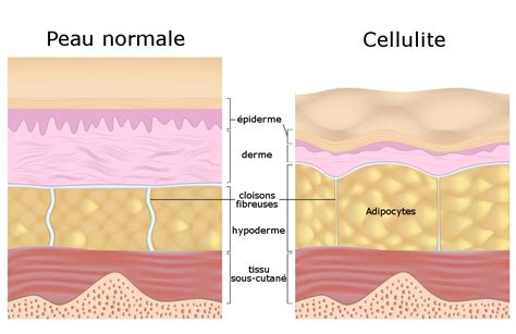 Causes of cellulite picture 9