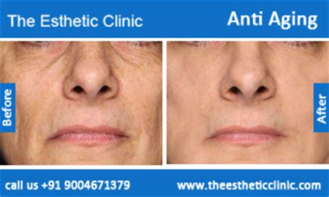 aldara treatment for anti aging picture 5