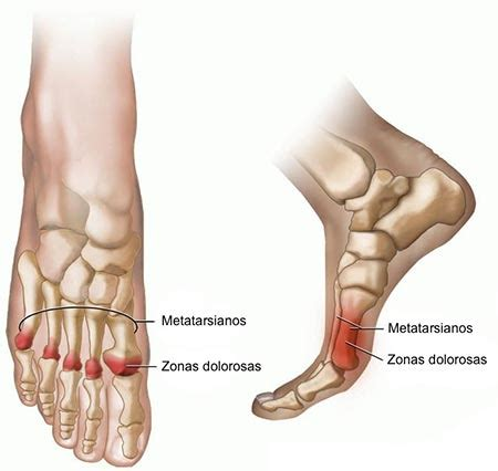 metatarsal pain relief picture 5