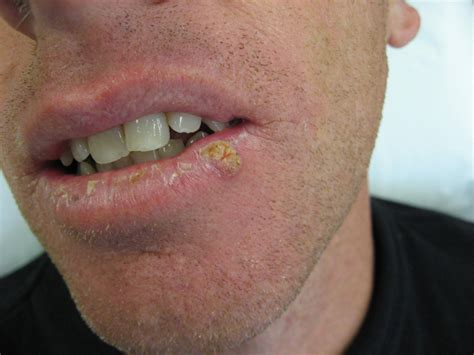 lip warts picture 6