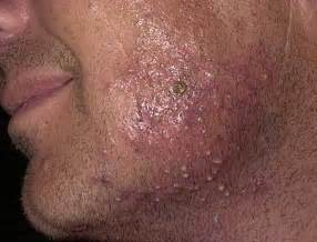 staph infection from water warts picture 5
