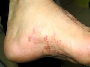 fungus toenails picture 14