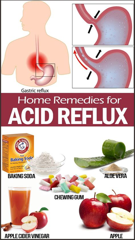 cure for acid indigestion picture 5