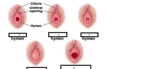 cribriform hymen surgery in karachi picture 9