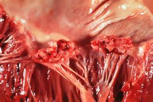 bacterial endocarditis picture 2