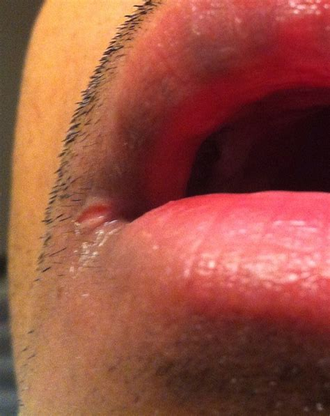 corners of lips ed fungus picture 7