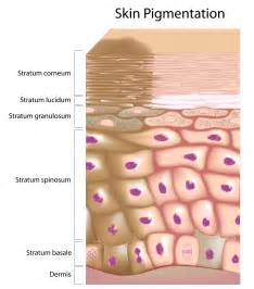 diagnosed different color pigmentation on skin picture 1