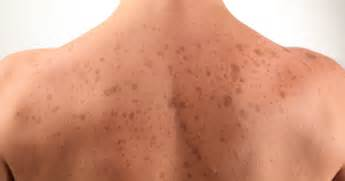 dark raised patches on skin picture 11