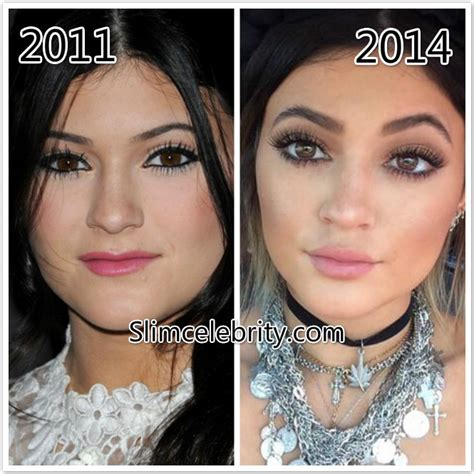 how much does lip augmentation cost picture 8
