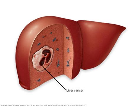 carcinoma of the liver picture 6