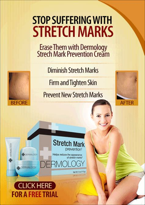chemical does not remove stretch marks picture 14
