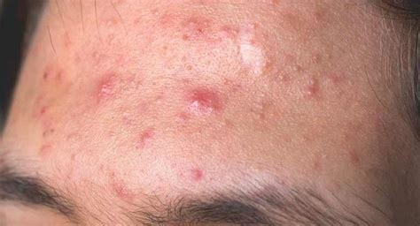 acne after hysterectomy picture 7