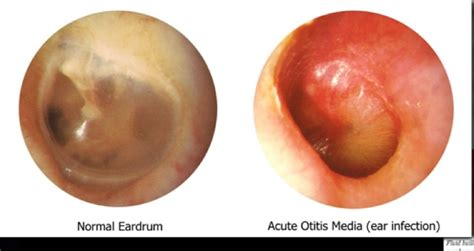 bacterial infections of the inner ear picture 8