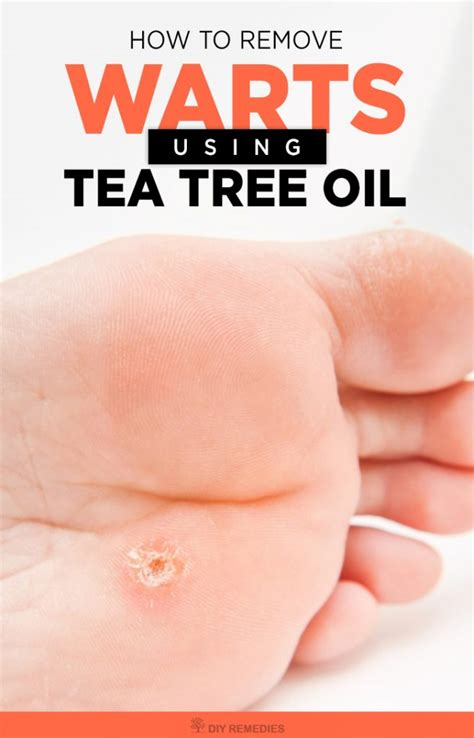 tea tree oil genital warts burning smell picture 12