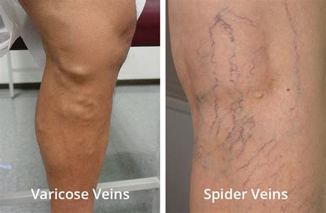small red spider veins under skin of monis picture 3