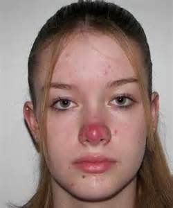 herpes specialist picture 9