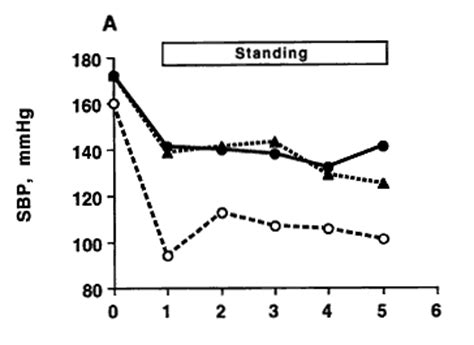 abnormal ekg dizziness high blood pressure picture 6