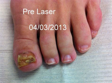 laser treatment nail fungus northern va. picture 9