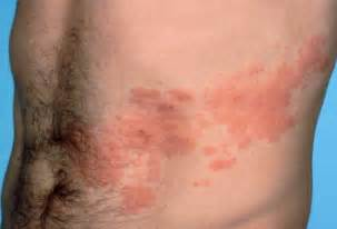 herpes zoster rash picture 6