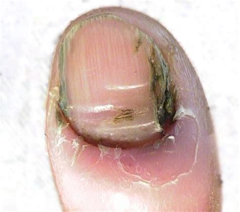 toenail fungus related to diabetes picture 1