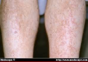 effexor skin itch picture 3