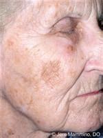 decreased and skin impairment picture 1