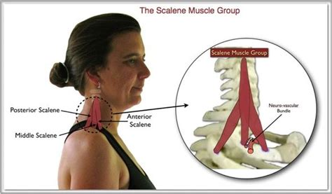 thyroid and muscle arm aches solution picture 11