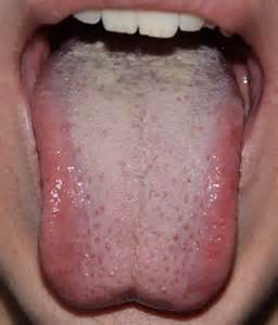 does garlic help white spot on tongue picture 4