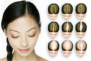 causes of hair loss in women picture 11