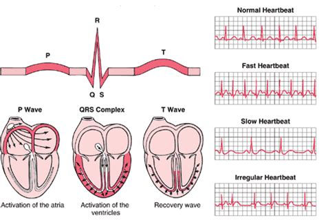 can herbal vitamins give you an abnormal ekg picture 2