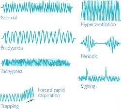 abnormal sleep patterns picture 14