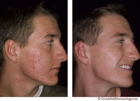 acne scarring treatment picture 15