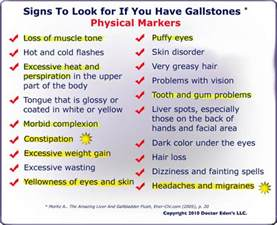 symptoms of gall bladder attack picture 1