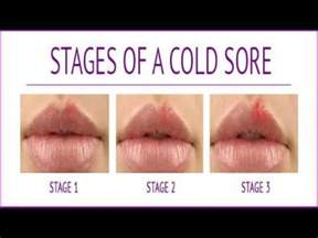 although, cold sores is one of the symptoms picture 14